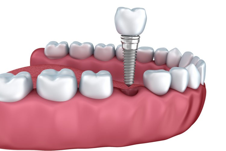 Dental implants are a common procedure to permanently replace missing teeth.