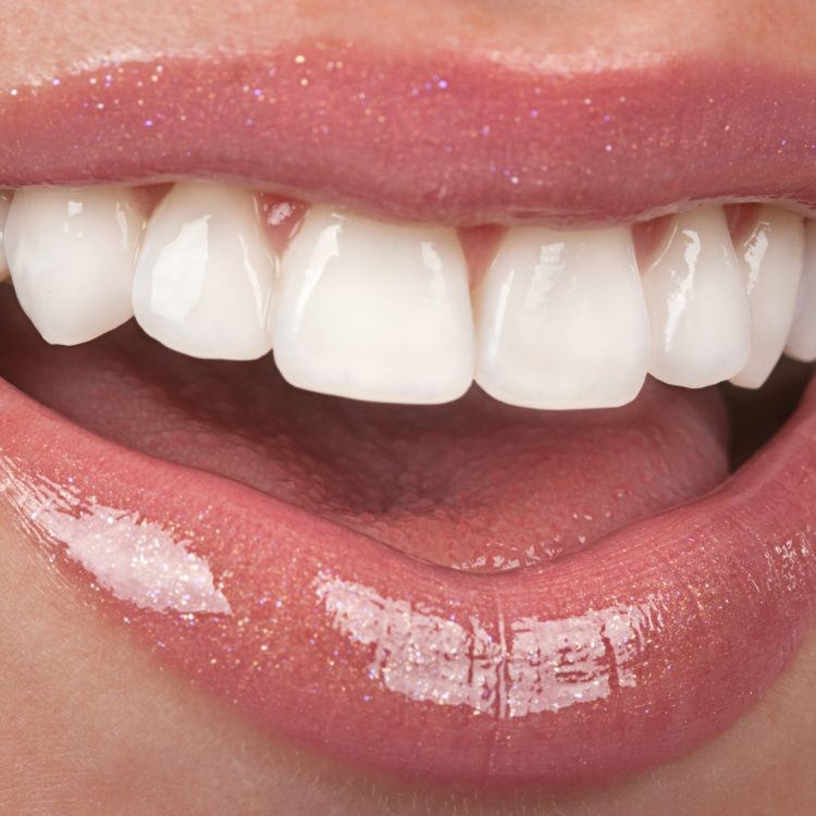 Results from Dental Whitening Procedure