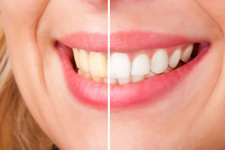Before and After Results of Dental Whitening