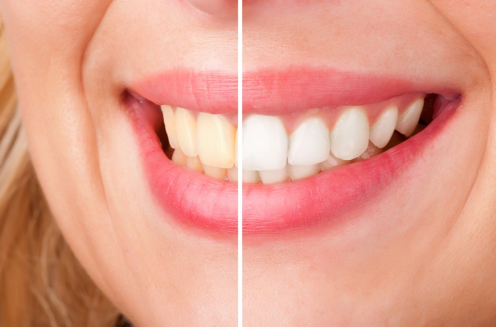 Laser Teeth Whitening In Tenafly Nj Teeth Bleaching